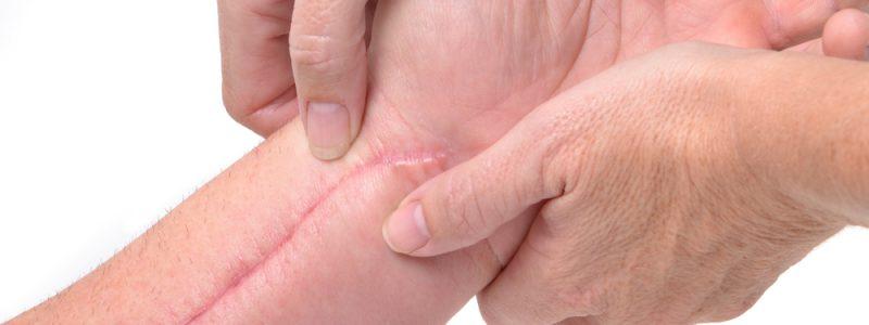 littekenmassage-2